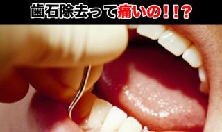 歯石除去,痛い