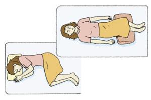 ぎっくり腰の治療の体制